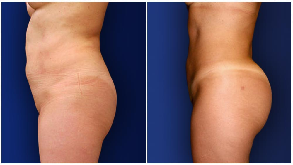 Brazilian Butt Lift - female patient (31 years) before and after