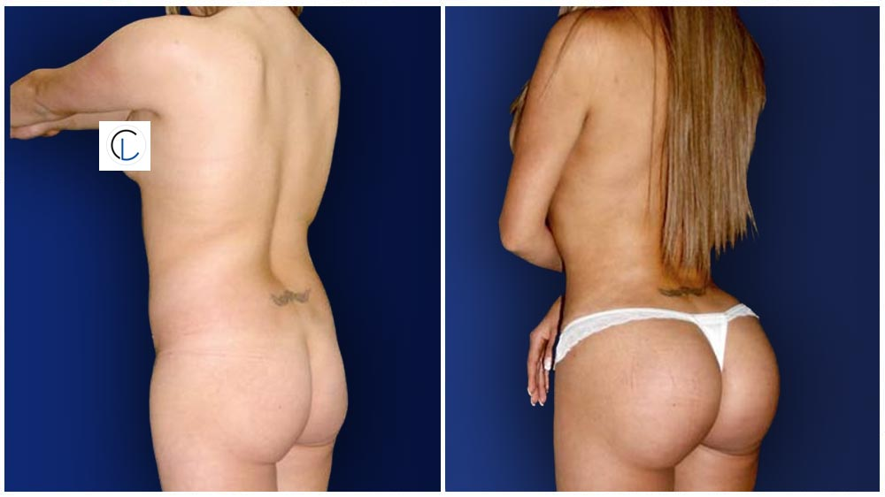 Fat Transfer to Buttocks Patient (34 years)