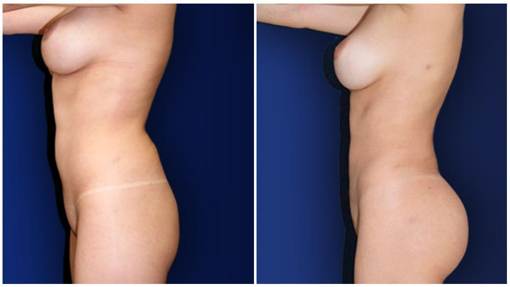 Wichita Liposuction Specialty Clinic -  Fat Transfer to Buttocks Patient