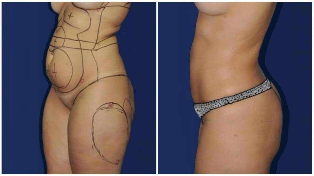 Lipo360 Female Patient (34 years)